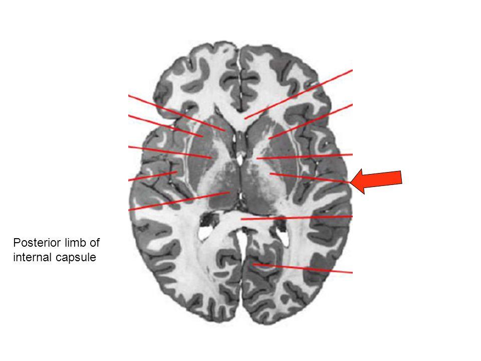Posterior limb of internal capsule