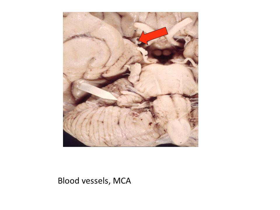 Blood vessels, MCA
