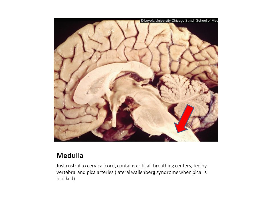 Medulla Just rostral to cervical cord, contains critical breathing centers, fed by vertebral and pica arteries (lateral wallenberg syndrome when pica is blocked)