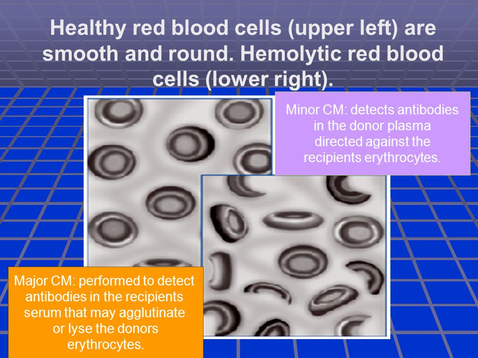 Healthy red blood cells (upper left) are smooth and round.