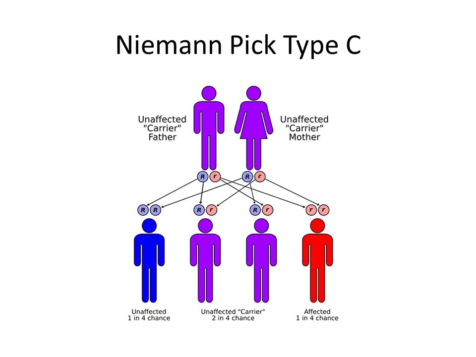 Niemann Pick Type C