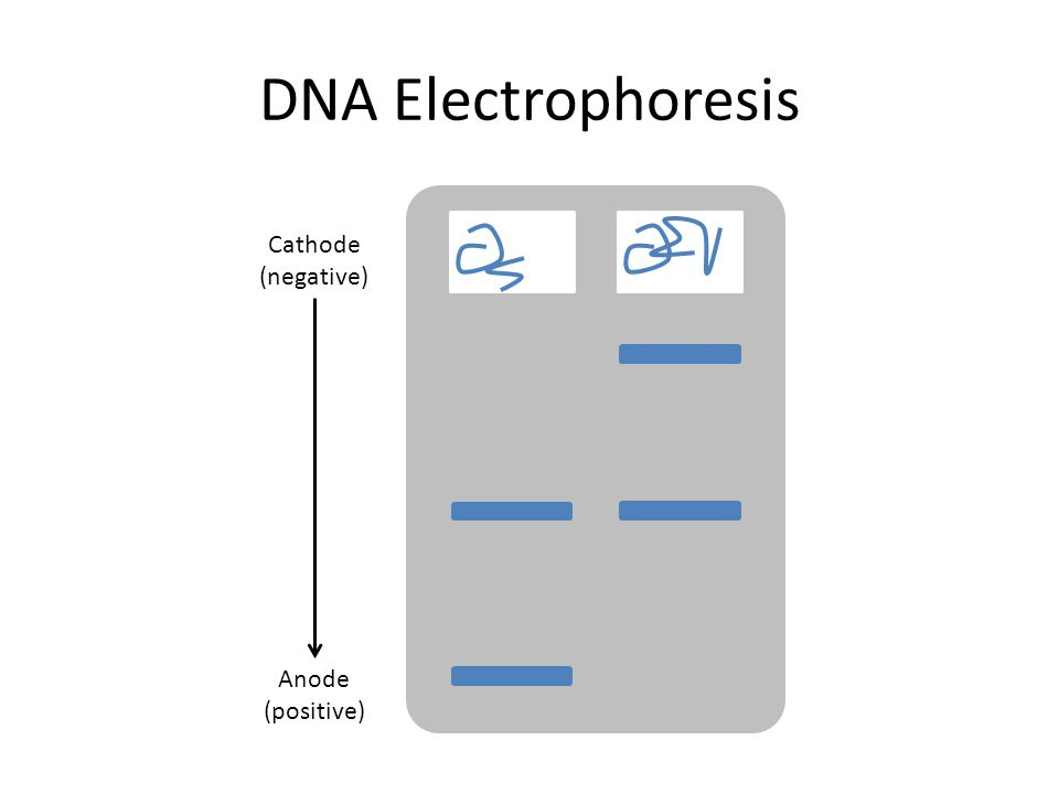 DNA Electrophoresis Cathode (negative) Anode (positive)