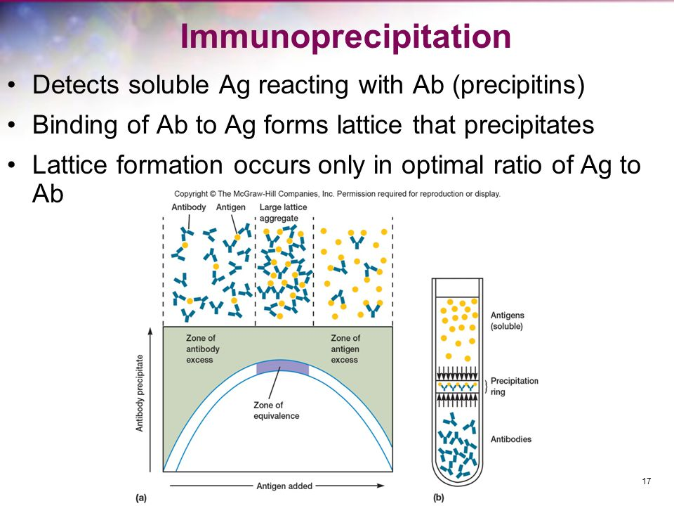 Immunoprecipitation Detects soluble Ag reacting with Ab (precipitins) Binding of Ab to Ag forms lattice that precipitates Lattice formation occurs only in optimal ratio of Ag to Ab 17