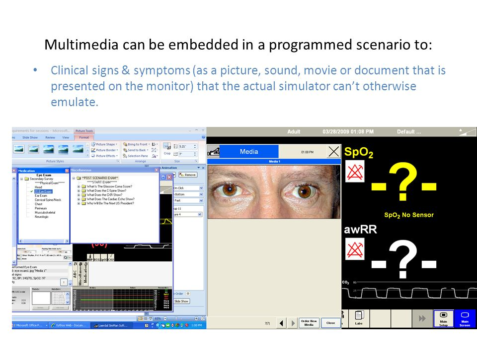 Multimedia can be embedded in a programmed scenario to: Clinical signs & symptoms (as a picture, sound, movie or document that is presented on the mon