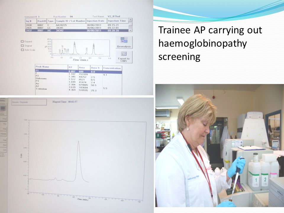 Trainee AP carrying out haemoglobinopathy screening