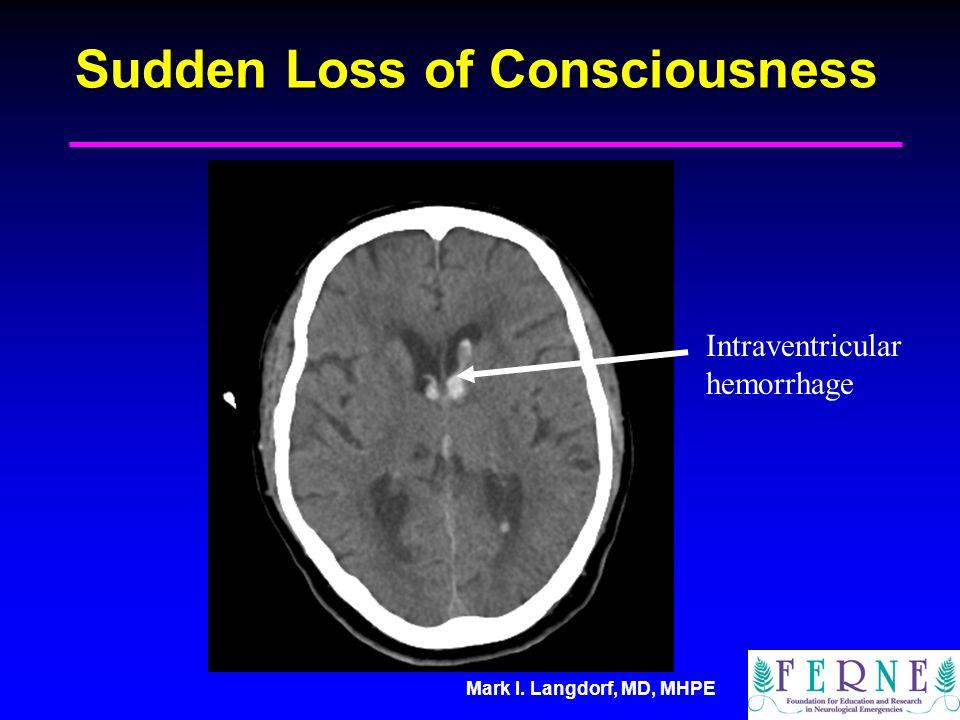 Mark I. Langdorf, MD, MHPE Sudden Loss of Consciousness Intraventricular hemorrhage