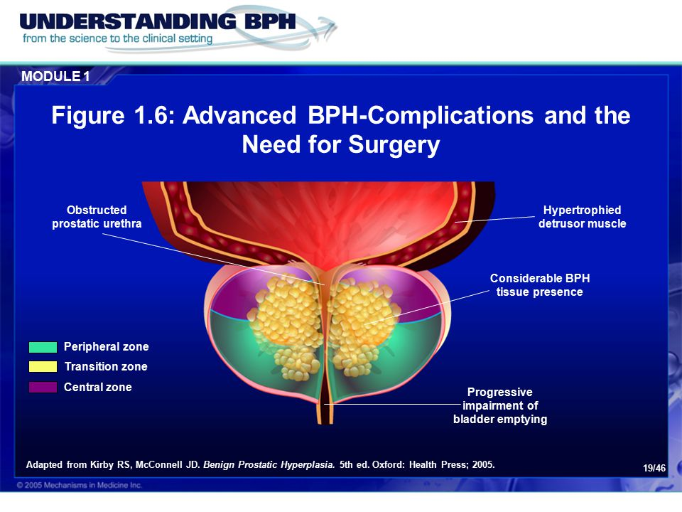 MODULE 1 19/46 Figure 1.6: Advanced BPH-Complications and the Need for Surgery Obstructed prostatic urethra Hypertrophied detrusor muscle Considerable BPH tissue presence Progressive impairment of bladder emptying Peripheral zone Transition zone Central zone Adapted from Kirby RS, McConnell JD.