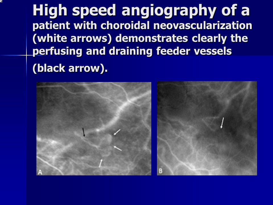 High speed angiography of a patient with choroidal neovascularization (white arrows) demonstrates clearly the perfusing and draining feeder vessels (b