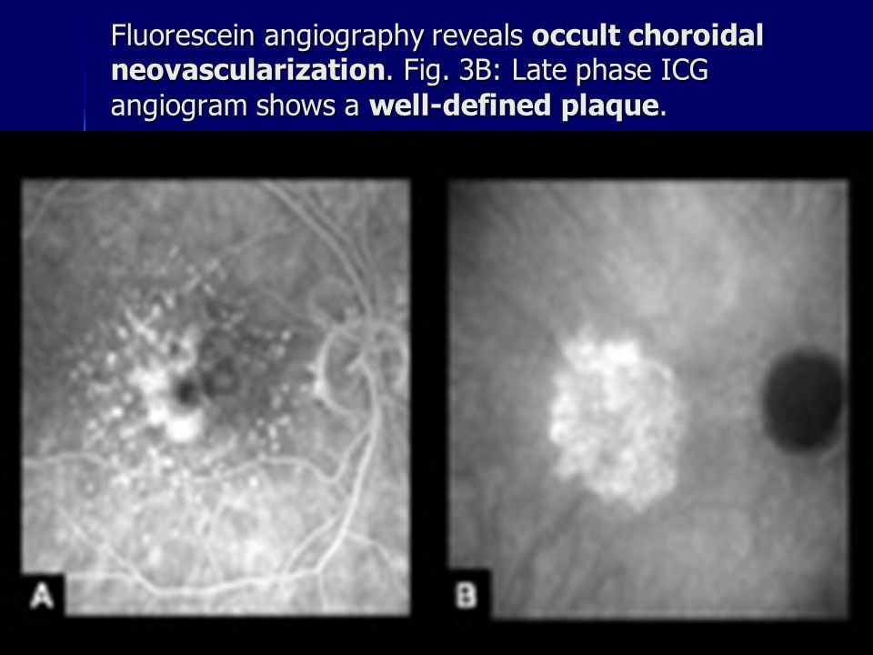 Fluorescein angiography reveals occult choroidal neovascularization. Fig. 3B: Late phase ICG angiogram shows a well-defined plaque.