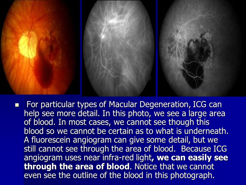 For particular types of Macular Degeneration, ICG can help see more detail. In this photo, we see a large area of blood. In most cases, we cannot see