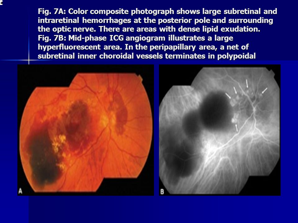 Fig. 7A: Color composite photograph shows large subretinal and intraretinal hemorrhages at the posterior pole and surrounding the optic nerve. There a