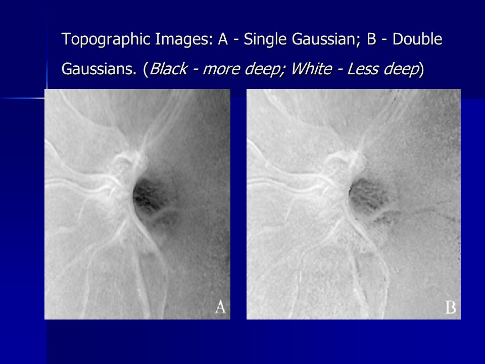Topographic Images: A - Single Gaussian; B - Double Gaussians.