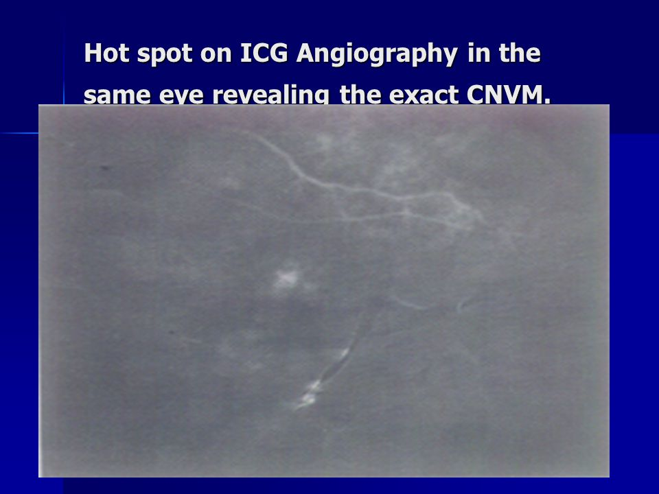 Hot spot on ICG Angiography in the same eye revealing the exact CNVM.