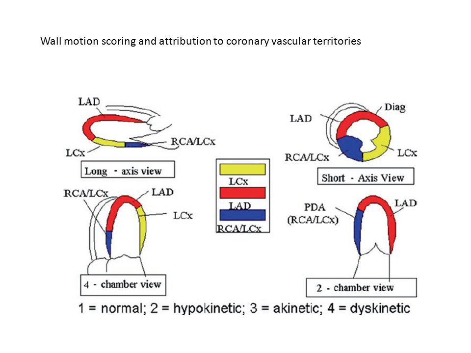 Wall motion scoring and attribution to coronary vascular territories
