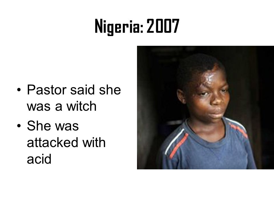 Nigeria: 2007 Pastor said she was a witch She was attacked with acid