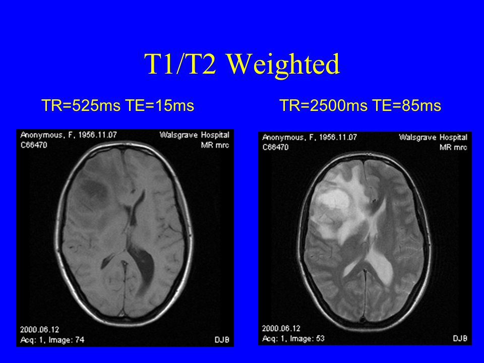 T1/T2 Weighted Image TR = 562ms TE = 20ms TR = 4000ms TE = 132ms