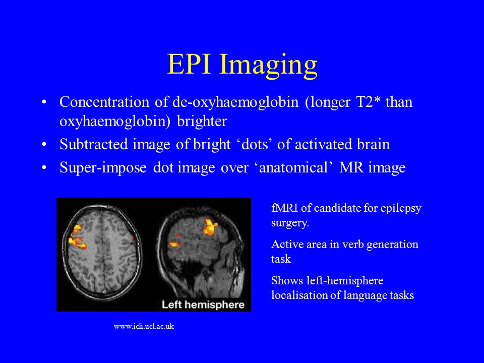 EPI Imaging Each slice acquired in 10s of ms Used as basis for functional MRI (fMRI) Images acquired during 'activation' (e.g.