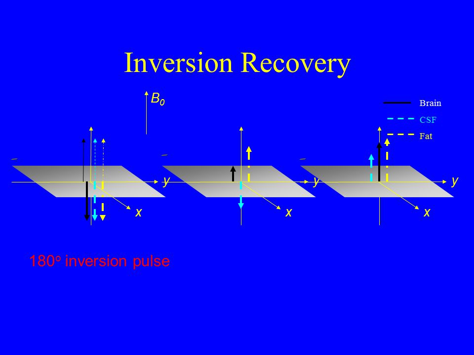 Inversion Recovery Due to inverting 180 o pulse, magnetization is recovering from a negative value Mz(t)=Mo[1-2exp(-TI/T1)] With correct TI (1=2exp(-TI/T1) or TI=ln2T1) can eliminate signal from a tissue type completely Mz t Fat Brain CSF