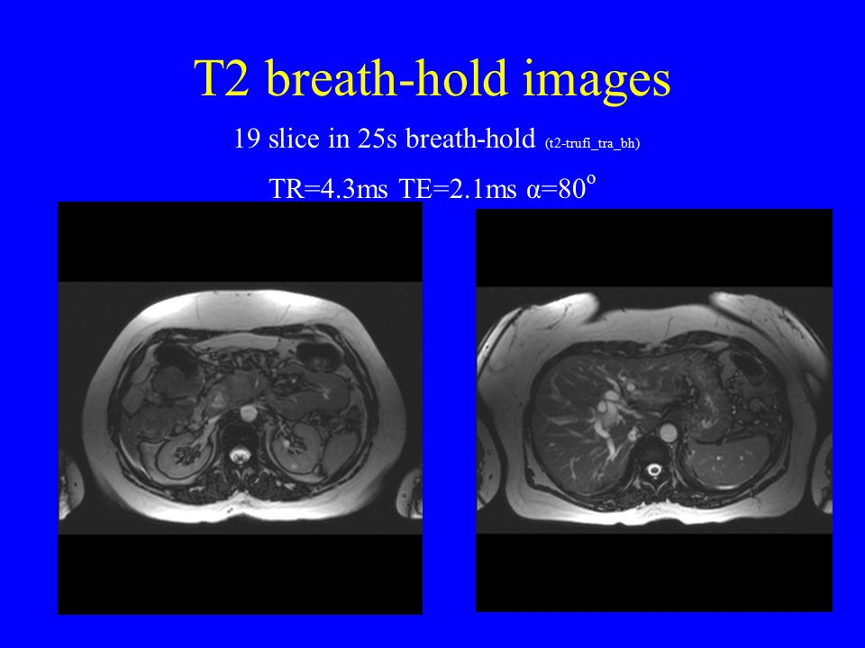 T1 Breath-hold Images 14 slices in 23s breath-hold (t1_fl2d_tra_bh) TR=16.6ms, TE=6ms α=70 o