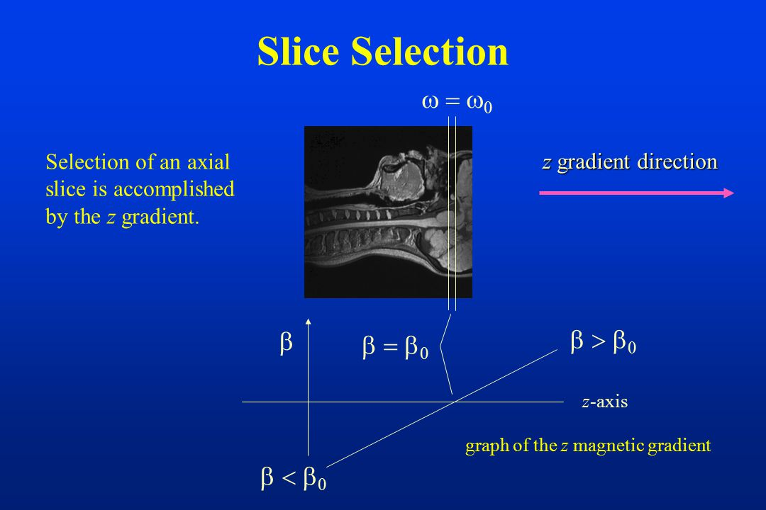 Slice Selection Selection of an axial slice is accomplished by the z gradient.