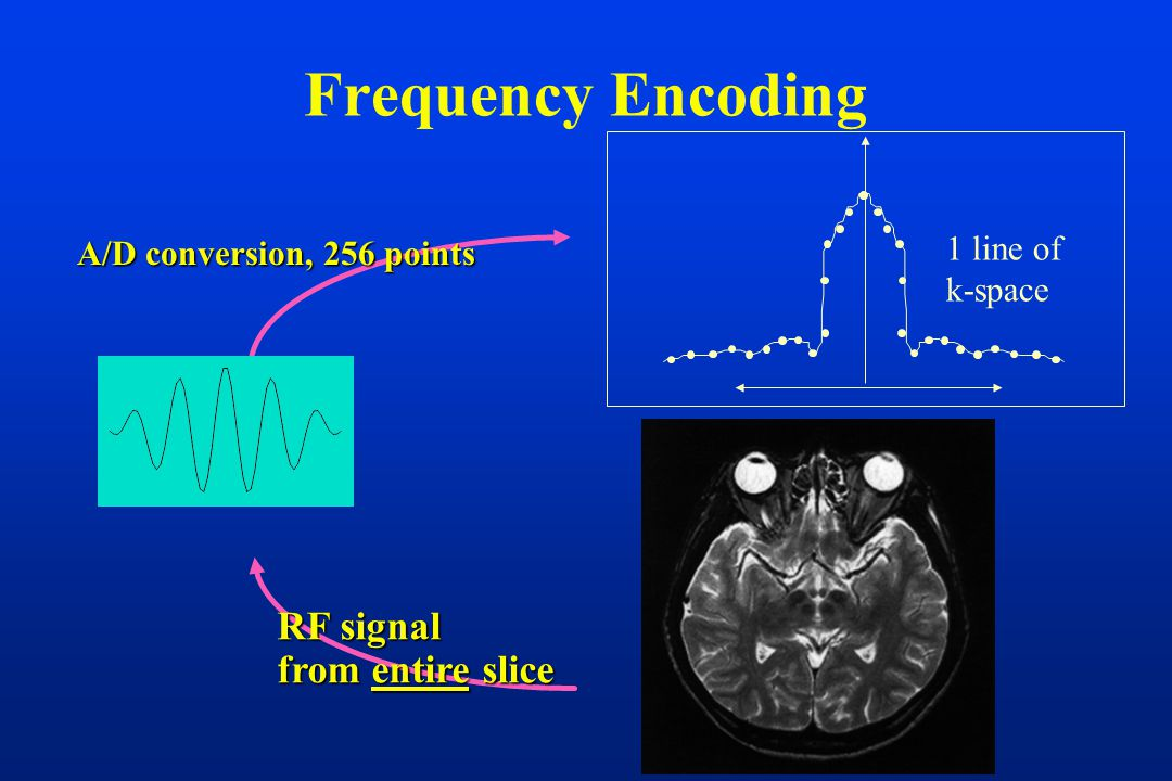 Frequency Encoding RF signal from entire slice A/D conversion, 256 points 1 line of k-space