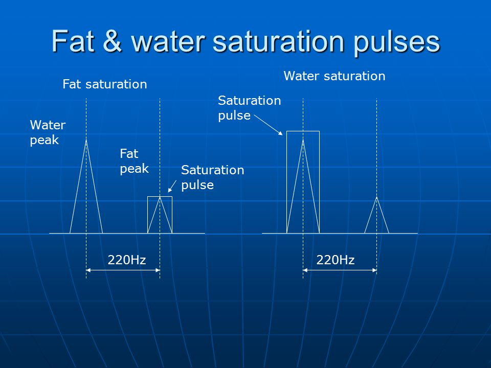 220Hz Water peak Fat peak Saturation pulse Fat saturation Water saturation Fat & water saturation pulses