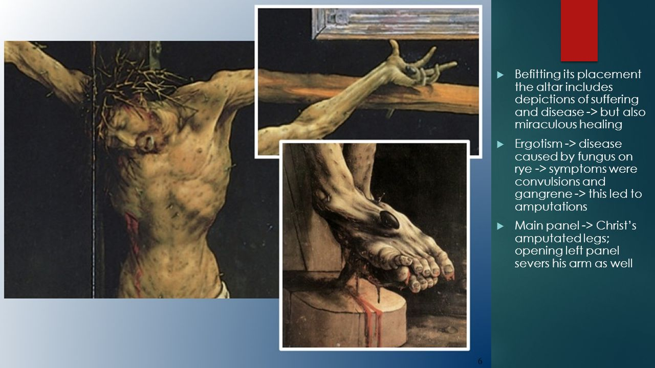  Befitting its placement the altar includes depictions of suffering and disease -> but also miraculous healing  Ergotism -> disease caused by fungus on rye -> symptoms were convulsions and gangrene -> this led to amputations  Main panel -> Christ's amputated legs; opening left panel severs his arm as well