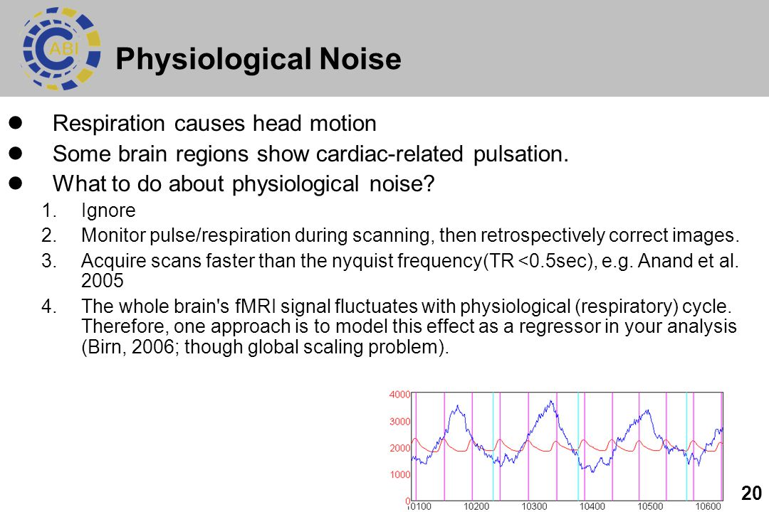 20 Physiological Noise Respiration causes head motion Some brain regions show cardiac-related pulsation.