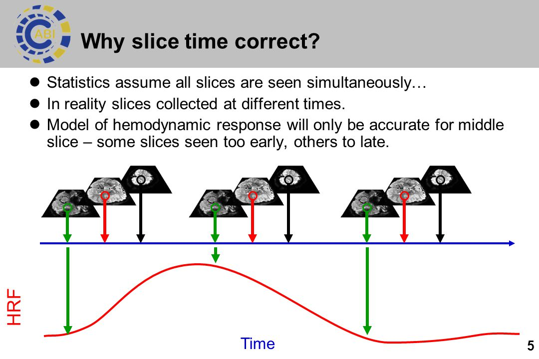 5 Why slice time correct.