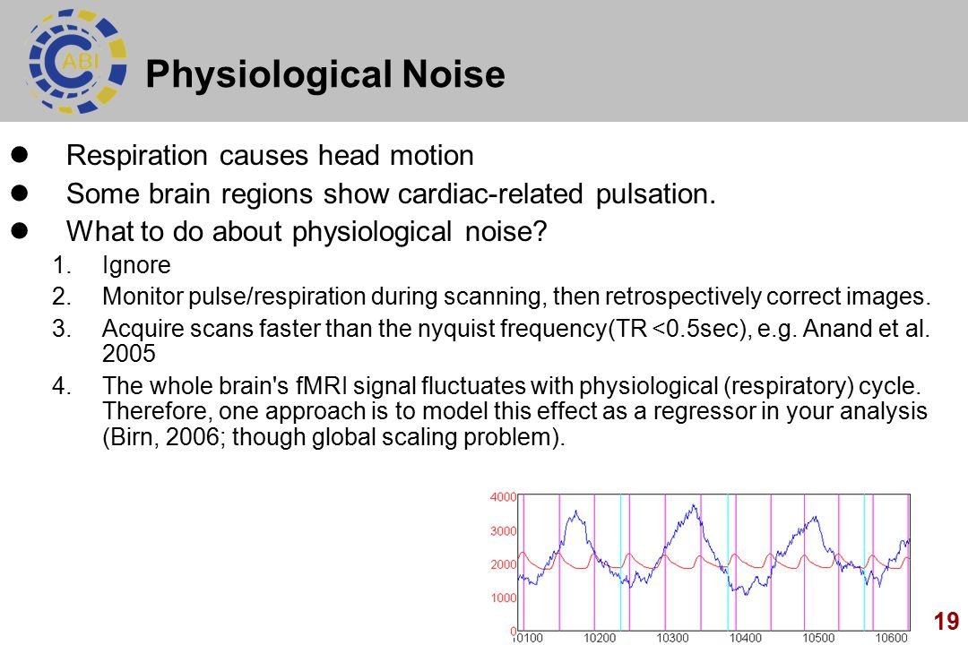 19 Physiological Noise Respiration causes head motion Some brain regions show cardiac-related pulsation.