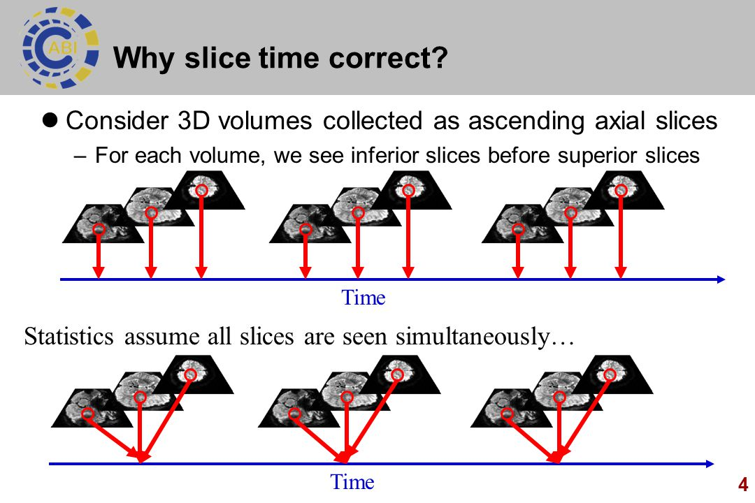 4 Why slice time correct.