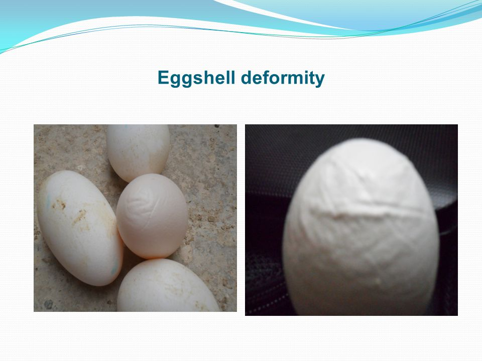 Eggshell deformity