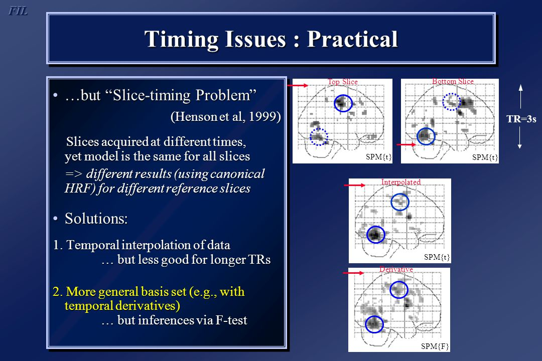 "Timing Issues : Practical …but ""Slice-timing Problem""…but ""Slice-timing Problem"" (Henson et al, 1999) Slices acquired at different times, yet model is"