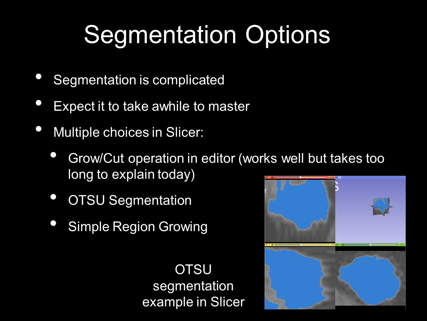Segmentation Options Segmentation is complicated Expect it to take awhile to master Multiple choices in Slicer: Grow/Cut operation in editor (works well but takes too long to explain today) OTSU Segmentation Simple Region Growing OTSU segmentation example in Slicer