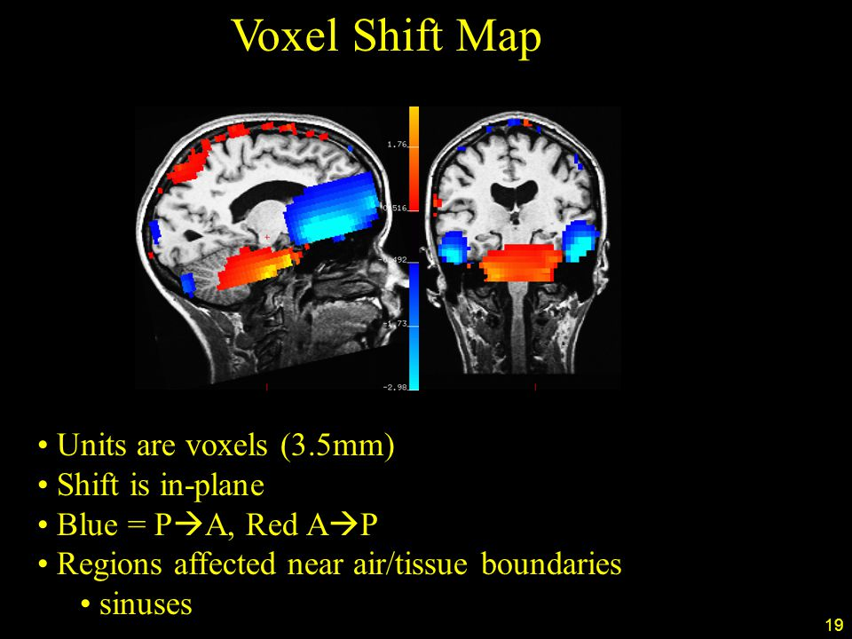 19 Voxel Shift Map Units are voxels (3.5mm) Shift is in-plane Blue = P  A, Red A  P Regions affected near air/tissue boundaries sinuses