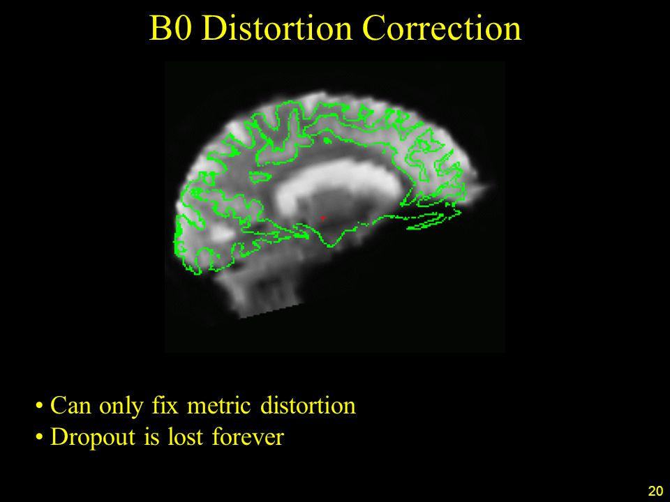 20 B0 Distortion Correction Can only fix metric distortion Dropout is lost forever