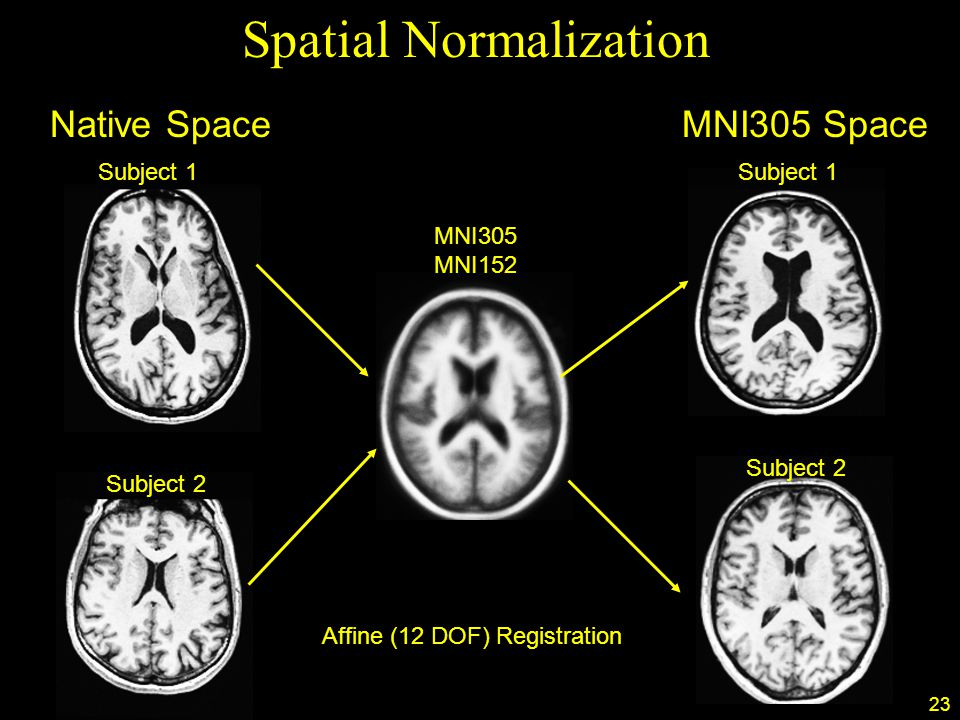 23 Spatial Normalization Subject 1 Subject 2 Subject 1 Subject 2 MNI305 MNI152 Native SpaceMNI305 Space Affine (12 DOF) Registration