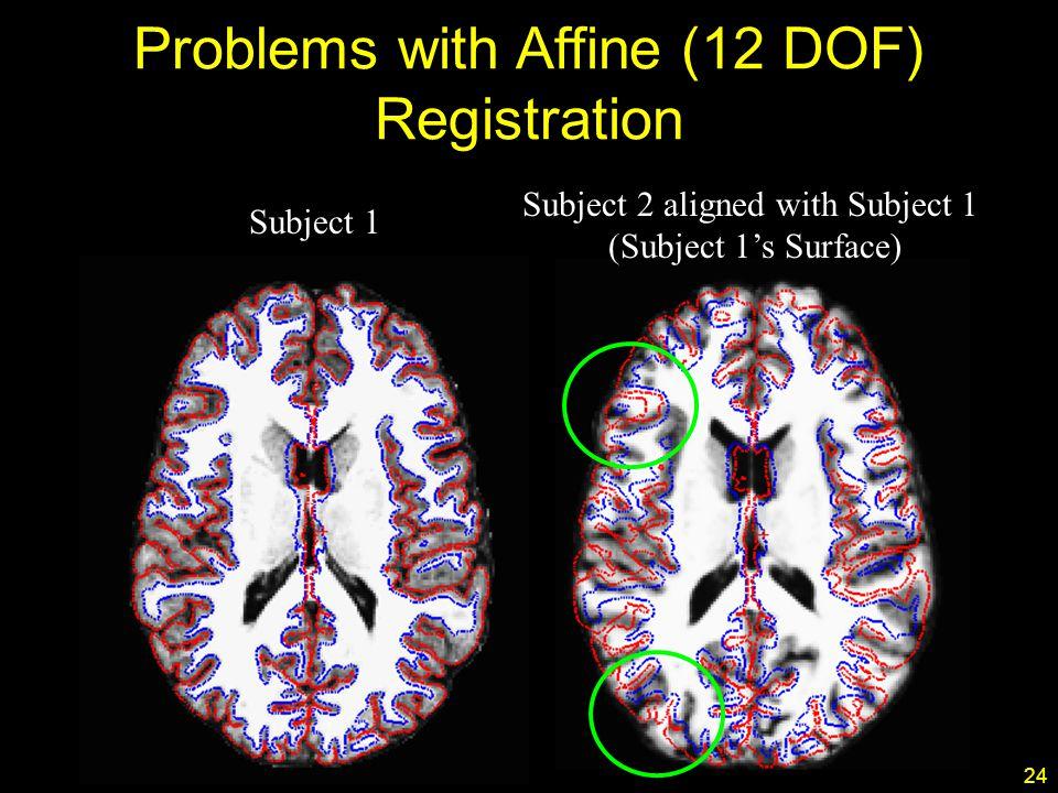 24 Subject 1 Subject 2 aligned with Subject 1 (Subject 1's Surface) Problems with Affine (12 DOF) Registration