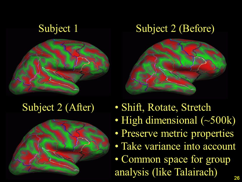 26 Surface Registration Subject 1Subject 2 (Before) Subject 2 (After) Shift, Rotate, Stretch High dimensional (~500k) Preserve metric properties Take variance into account Common space for group analysis (like Talairach)