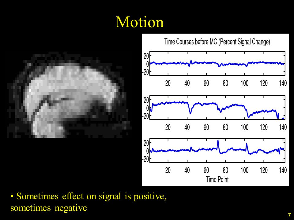 7 Motion Sometimes effect on signal is positive, sometimes negative