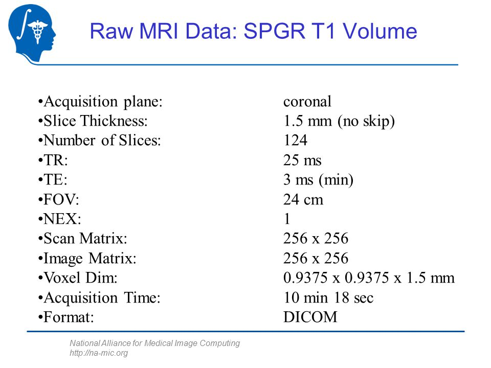 National Alliance for Medical Image Computing http://na-mic.org Raw MRI Data: SPGR T1 Volume Acquisition plane: coronal Slice Thickness:1.5 mm (no skip) Number of Slices:124 TR:25 ms TE:3 ms (min) FOV:24 cm NEX:1 Scan Matrix:256 x 256 Image Matrix:256 x 256 Voxel Dim:0.9375 x 0.9375 x 1.5 mm Acquisition Time:10 min 18 sec Format:DICOM