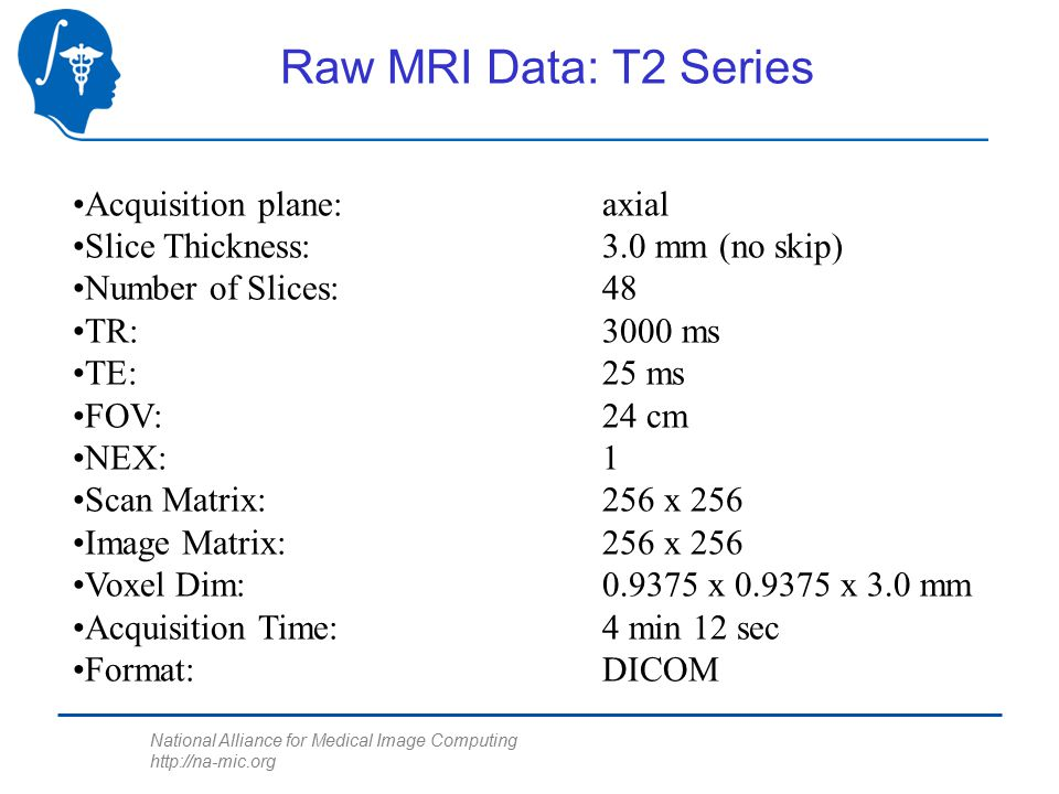 National Alliance for Medical Image Computing http://na-mic.org Raw MRI Data: T2 Series Acquisition plane: axial Slice Thickness:3.0 mm (no skip) Number of Slices:48 TR:3000 ms TE:25 ms FOV:24 cm NEX:1 Scan Matrix:256 x 256 Image Matrix:256 x 256 Voxel Dim:0.9375 x 0.9375 x 3.0 mm Acquisition Time:4 min 12 sec Format:DICOM