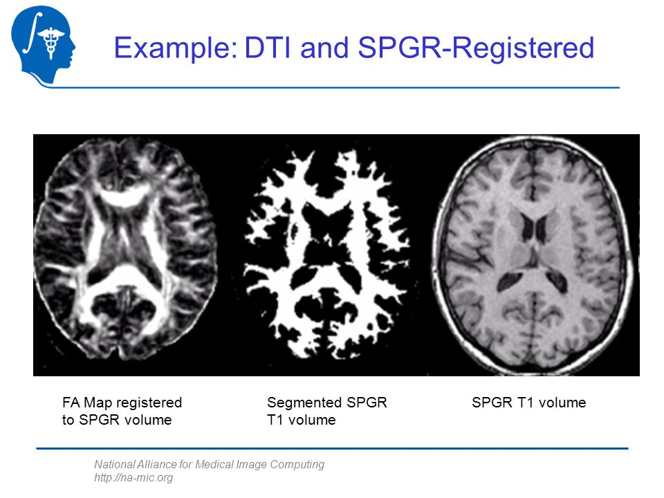 National Alliance for Medical Image Computing http://na-mic.org FA Map registered to SPGR volume Segmented SPGR T1 volume SPGR T1 volume Example: DTI and SPGR-Registered