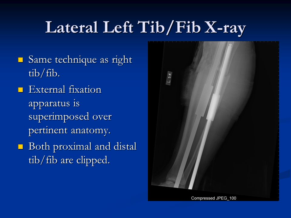 Lateral Left Tib/Fib X-ray Same technique as right tib/fib. Same technique as right tib/fib. External fixation apparatus is superimposed over pertinen