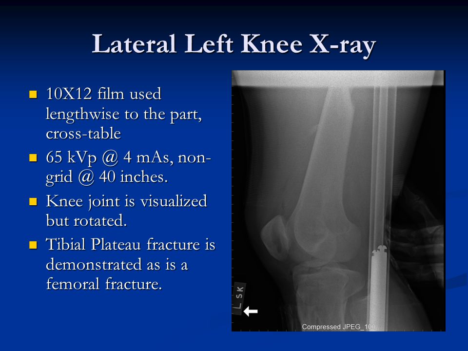 Lateral Left Knee X-ray 10X12 film used lengthwise to the part, cross-table 10X12 film used lengthwise to the part, cross-table 65 kVp @ 4 mAs, non- grid @ 40 inches.