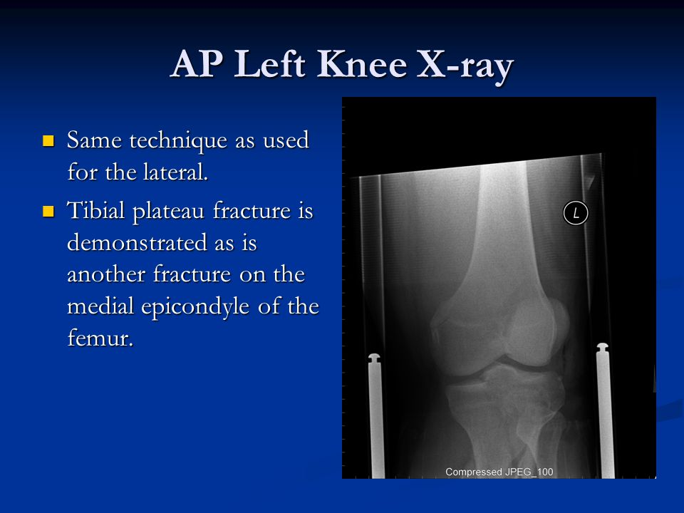 AP Left Knee X-ray Same technique as used for the lateral.