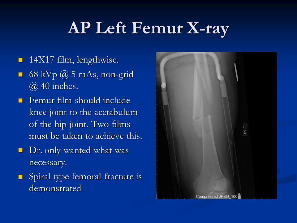 AP Left Femur X-ray 14X17 film, lengthwise. 14X17 film, lengthwise.