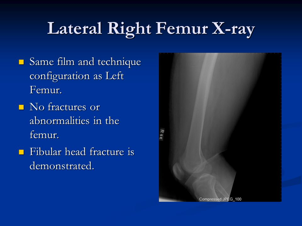 Lateral Right Femur X-ray Same film and technique configuration as Left Femur.