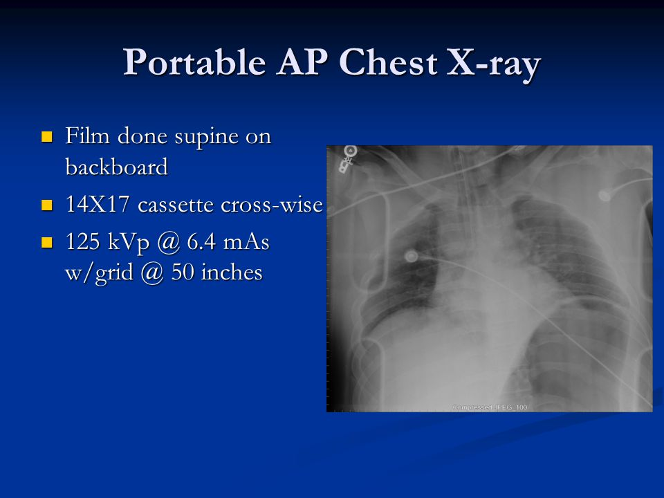 Portable AP Chest X-ray Film done supine on backboard Film done supine on backboard 14X17 cassette cross-wise 14X17 cassette cross-wise 125 kVp @ 6.4 mAs w/grid @ 50 inches 125 kVp @ 6.4 mAs w/grid @ 50 inches