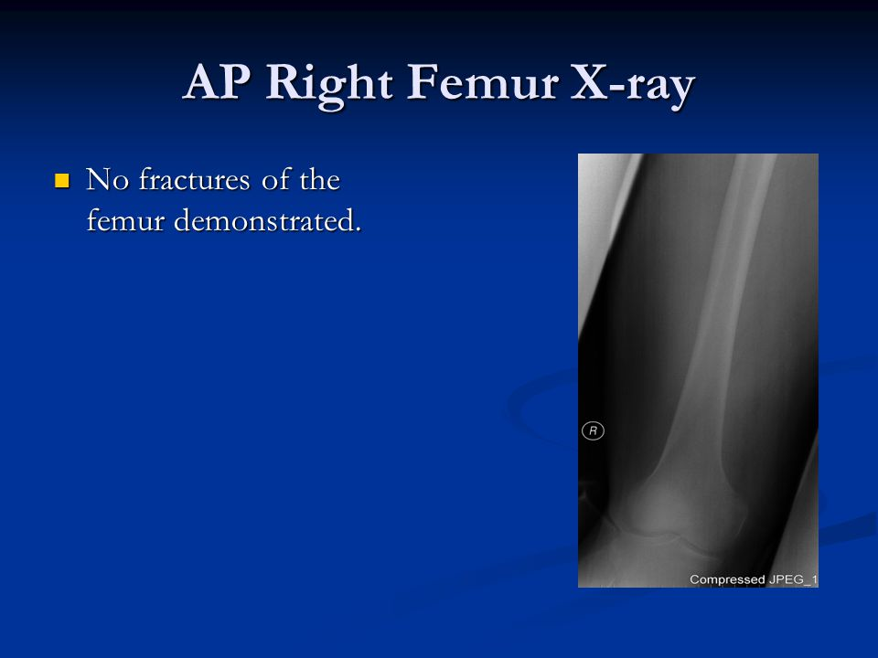 AP Right Femur X-ray No fractures of the femur demonstrated.